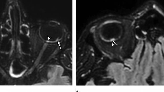 MRI Scans Link COVID-19 to Potentially Dangerous Eye Abnormalities
