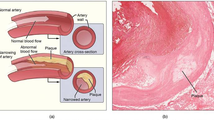 Review: Changing Views on Atherosclerosis