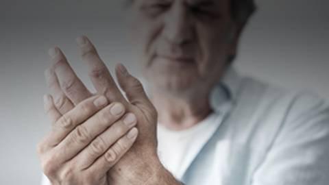 Precision Medicine in RA: A New Test for Predicting Anti-TNF Therapies