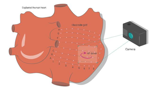 Machine Learning Helps Pinpoint Sources of Most Common Cardiac Arrhythmia