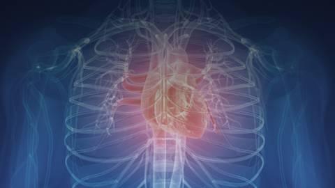 Gene Variations Guide Anticoagulation Strategies After Cardiac Catheterization