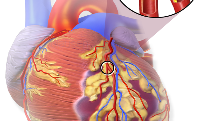 Women Found To Be at Higher Risk for Heart Failure & Heart Attack Death Than Men