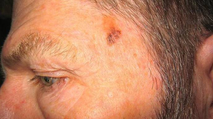 Researchers Find Largest Yearly Declines Ever Recorded in Melanoma Deaths
