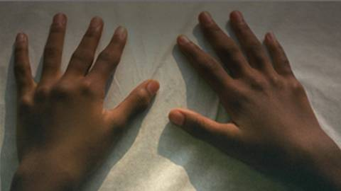 Closing the Gap in Health Disparities for Rheumatology Patients