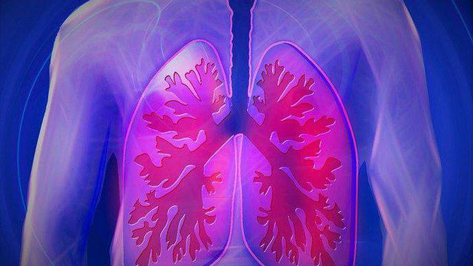 What Is Causing Long-Term Lung Damage in Asymptomatic COVID-19 Cases?