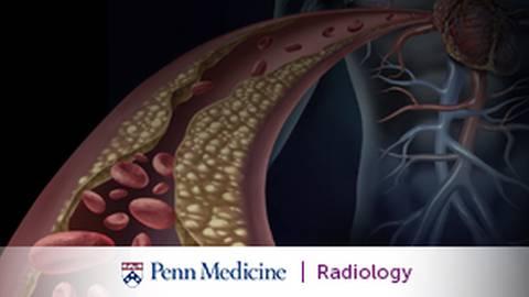 Complex Retrieval of Embedded Inferior Vena Cava Filters in Interventional Radiology