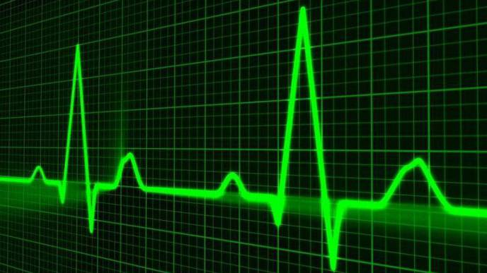 Study: Simple Surgical Procedure Reduces Stroke Risk in People with AFib