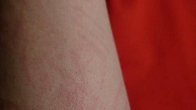 Community-Based Study Links Skin Rashes to COVID-19