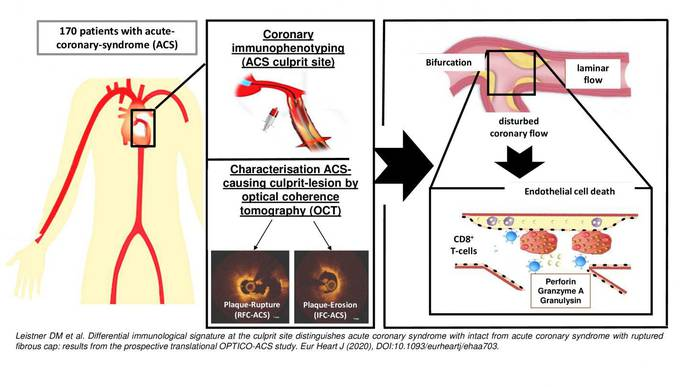 Tracking Down the Causes of Heart Attack