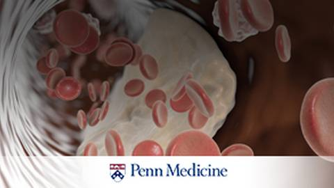 Unclog the Arteries: Treatment Options for Arterial Disease