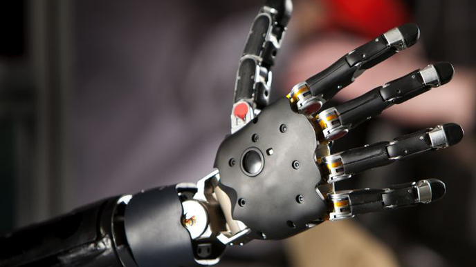 Could Prostheses Alleviate Amputees' Phantom Limb Pain?